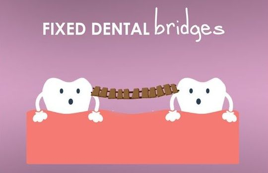 Crowns and Bridges – The Ultimate Tooth Restoration. A fixed dental bridge replaces one or more missing natural tooth. Book an appointment with Carrum Downs Dental​ - http://bit.ly/2uusKYG