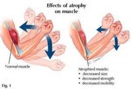 effects of muscle atrophy