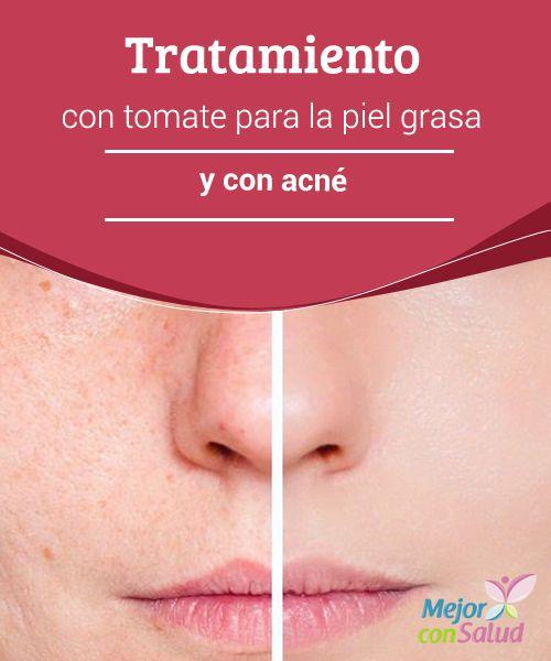 Tratamiento con tomate para la piel grasa y con acné -  Gracias a este tratamiento con tomate vas a conseguir una piel mucho más tersa, libre de grasa y sin acné.¡No te pierdas esta información!