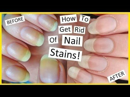 17 Best Images About N A I L S On Pinterest Nail Art My