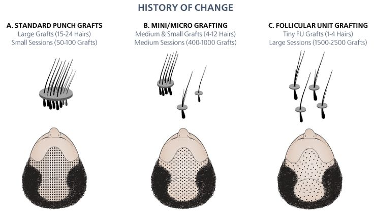 Get knowledge about follicular unit transplantation it is also known as strip surgery. explore this data and fetch the information.