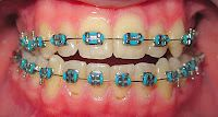 ortodonzia roma: Ortodonzia bambini