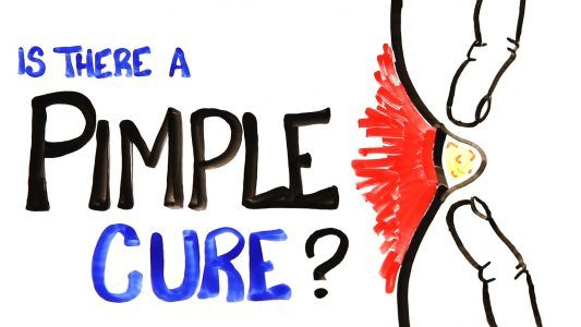 Is There A Pimple Cure? #news #alternativenews