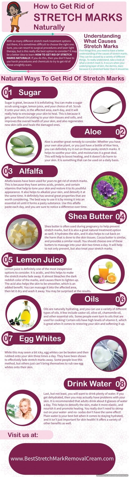8 Ways to Get Rid of Stretch Marks Naturally ...