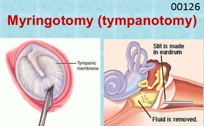 00126: Anesthesia for procedures on external, middle, and inner ear including biopsy: TYMPANOTOMY. (Defined as a surgical procedure to open the tympanic membrane (eardrum) and remove fluid, such as blood, pus, and/or water, from the middle ear. The fluid is typically caused by Eustachian tube function impairment (drainage function), infection or allergy. Also called a Myringotomy.)