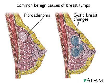 Breastfeeding Lump