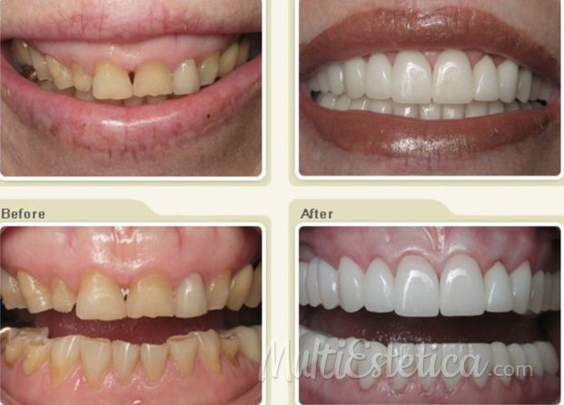 Vuelve a sonreír http://www.multiestetica.com/estetica-odontologia-vservicios-149.html