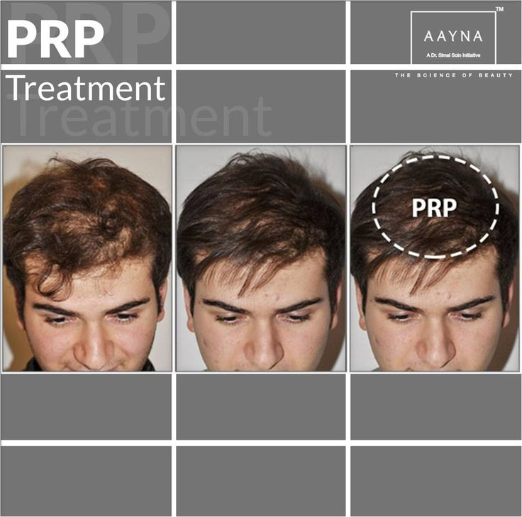 Hair! Never go away! Restore your hair back to its glory with Platelet Rich Plasma (PRP) Treatment.  Book an appointment now! http://www.aaynaclinic.com/prp