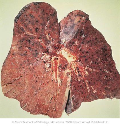 obat herbal untuk penyakit radang paru paru   Obat Batuk Berdarah