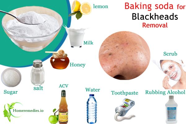 Use Baking Soda for Blackheads treatment, natural ways to get rid of blackheads on nose. Homemade blackhead removers, face mask to clear blackheads on cheek