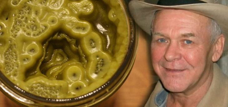 In 2003, Rick Simpson healed himself of skin cancer using cannabis oil. This is the recipe he perfected and recommends to others seeking to heal holistically.  Someday, everyone will know the name'Rick Simpson'. Why? Because, according to sources, the man rediscovered the cure for cancer. After being diagnosed with basal cell carcinoma skin cancer in 2003, Rick underwent conventional treatment and surgery. The Western method of 'treating' the issue, however, did little tobenefit his…