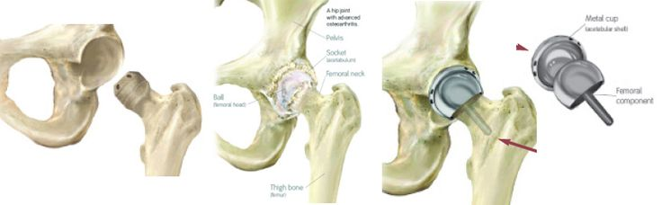 Low cost Hip resurfacing Surgery in India with Best Recovery Packages