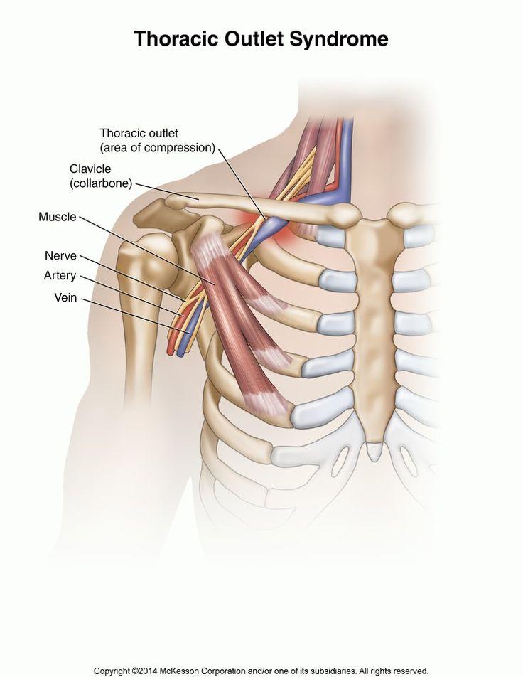 Ausgezeichnet Thoracic Outlet Anatomie Bilder - Menschliche Anatomie ...