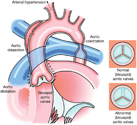 Illustration showing the typical congenital cardiovascular malformations seen in Turner syndrome—coarctation of the aorta, and bicuspid aortic valves, as well as the occurrence of aortic dilatation and dissection