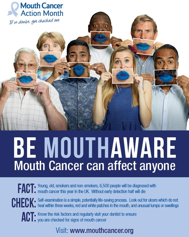 Be mouthaware! Mouth cancer can affect anyone! Fact: Young, old, smokers and non-smokers, 6,500 people will be diagnosed with mouth cancer this year in the UK. Without early detection half will die! #MCAM14 #Bemouthaware #MouthCancer #bluelipselfie