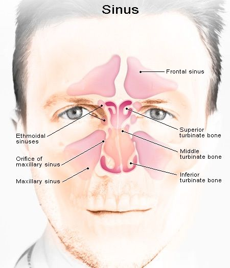 HOME REMEDIES FOR SINUS INFECTION...I DEFINITELY need this!!!