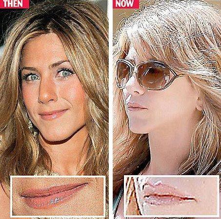 Jennifer Aniston Plastic Surgery - Nose & Boob Job Done! - http://plasticsurgerytalks.com/jennifer-aniston-plastic-surgery-nose-boob-job-done/