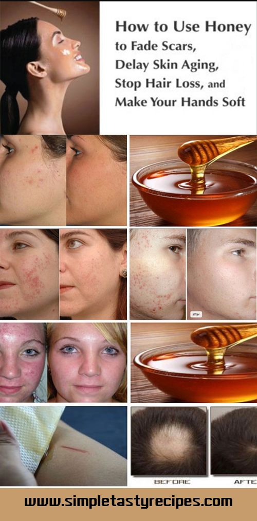Here's How To Use Honey to Fade Scars, Slow Down Aging of Skin and Reduce Hair Loss