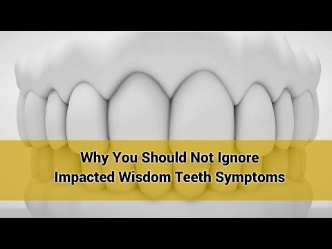 Impacted Wisdom Teeth Symptoms | All Smiles Dental allsmilesdentalpractice.com.au