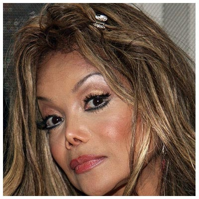 Botox Gone Wrong Before And After A Little Unusual
