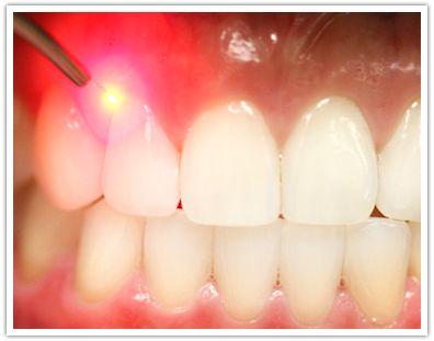 Laser Dentistry Benefits, courtesy O'fallon MO Dentist, monticellodental.com