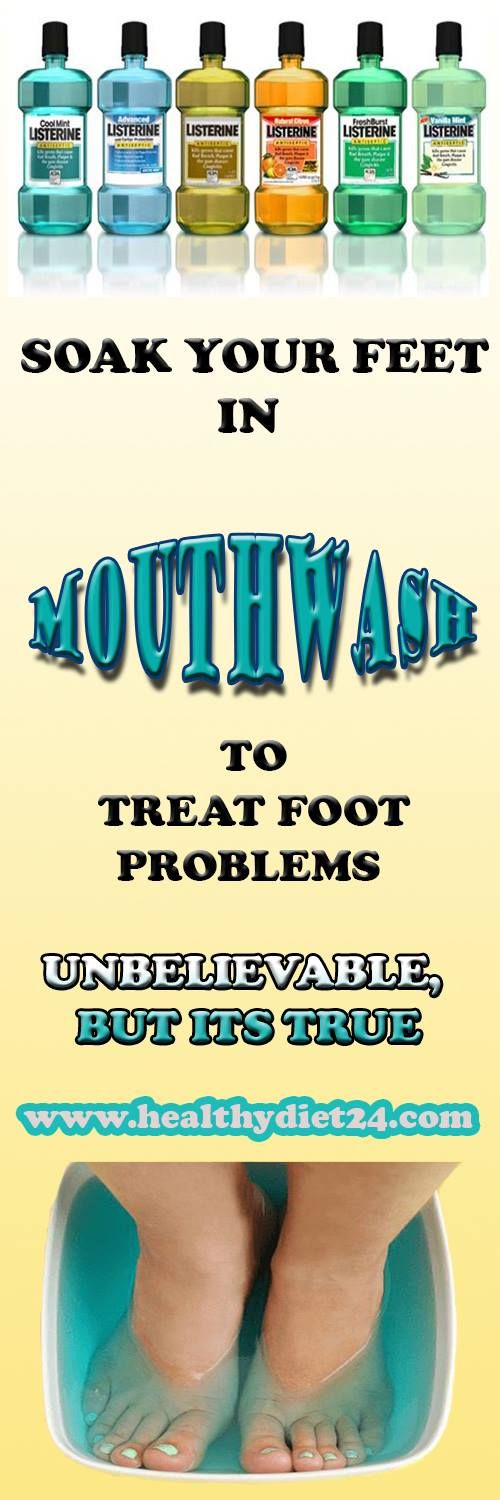 SOAK YOUR FEET IN MOUTHWASH TO TREAT FOOT PROBLEMS. UNBELIEVABLE BUT IT WORKS!