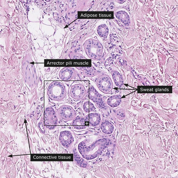 278 best Histology Slides images on Pinterest | Histology slides ...