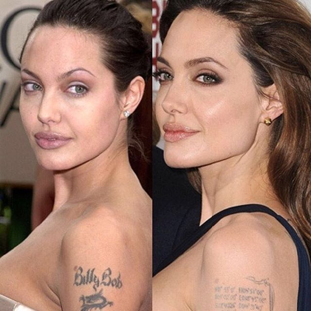 Striking results on Angelina Jolie who looks as though she has had a jawline reduction treatment using Botox, cheek enhancement using dermal fillers and a chin enhancement - beautiful facial sculpting #facesculpting #aesthetics #beauty #art #aestheticartist