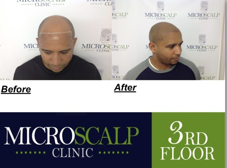 At Micro Scalp Clinic,There's finally a middle ground between spending time and money on hair transplant procedures and hair pieces or going bald all together. We provide exceptional Scalp Pigmentation services that are personalized to the individual needs of each and every client. call for FREE consultation. 617-752-2184