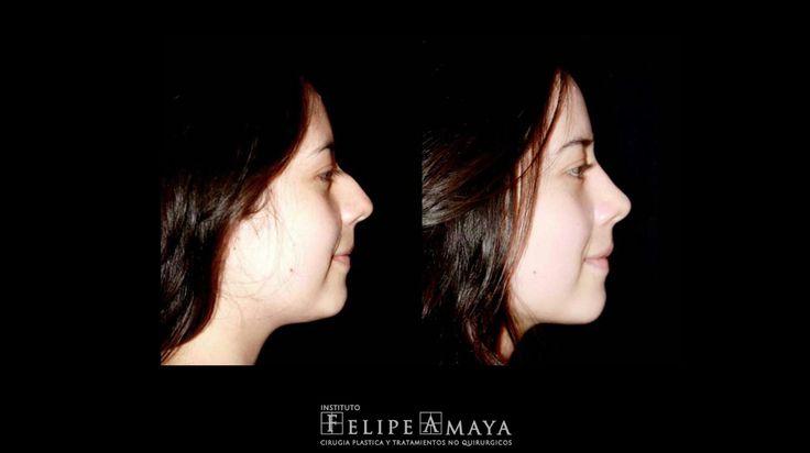 Cirugía de nariz, resultados armónicos y naturales www.felipeamaya.com/cirugia-nariz/ #InstitutoFelipeAmaya #CambiaTuFotoDePerfil