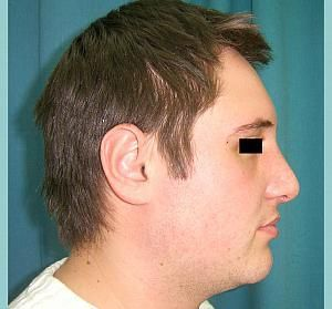 Plastic surgery, in plastic surgery clinics in Romania.#Rhinoplastyabroad  After Top Cosmetic Surgery Surgeons in Romania.  http://www.intermedline.com/services/medical-tourism-romania-treatment/aesthetic-surgery-clinics-romania#.UrdhFvQW3sk #cosmeticsurgeryoverseas, #cosmeticsurgeryRomania, #aestheticsurgeryabroad, #plasticsurgeryeasterneurope, #affordablecosmeticsurgery  #nosejobsabroad #medicaltourismeasterneurope #medicaltourismRomania  CONTACT NOW! office@intermedline.com ;