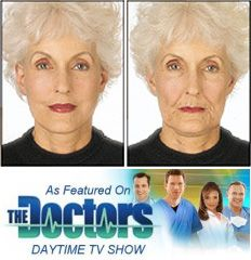 Face Lift Tapes -- Temporary Face Lift
