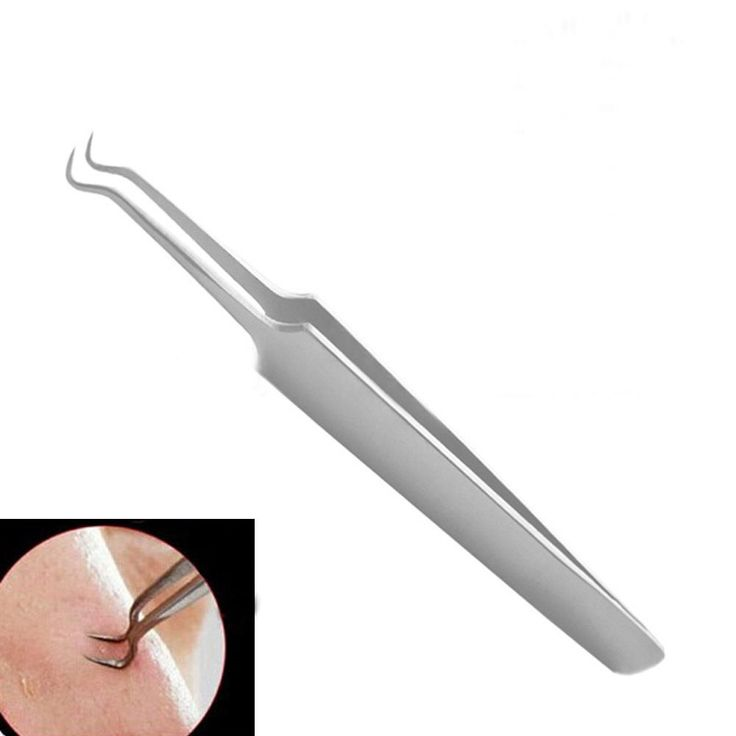 Whitehead Blackhead Acne Clips Pimple Remover //Price: $7.95 & FREE Shipping //     #trending    #love #TagsForLikes #TagsForLikesApp #TFLers #tweegram #photooftheday #20likes #amazing #smile #follow4follow #like4like #look #instalike #igers #picoftheday #food #instadaily #instafollow #followme #girl #iphoneonly #instagood #bestoftheday #instacool #instago #all_shots #follow #webstagram #colorful #style #swag #fashion