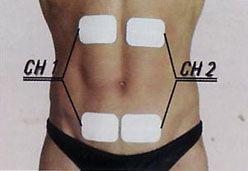 emplacement des électrodes pour électrostimulation des abdominaux grand droit