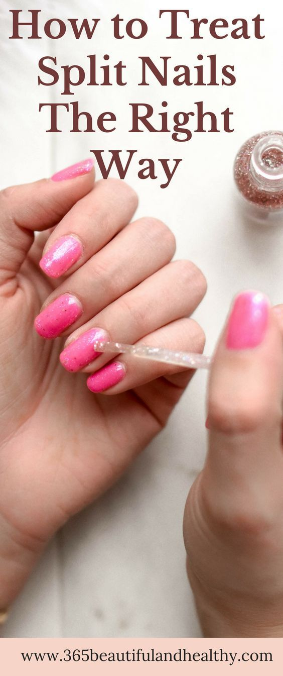 How to Treat Split Nails The Right Way   Tips & Toes   Split nails ...