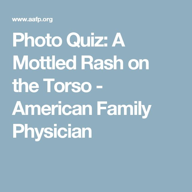 Photo Quiz: A Mottled Rash on the Torso - American Family Physician