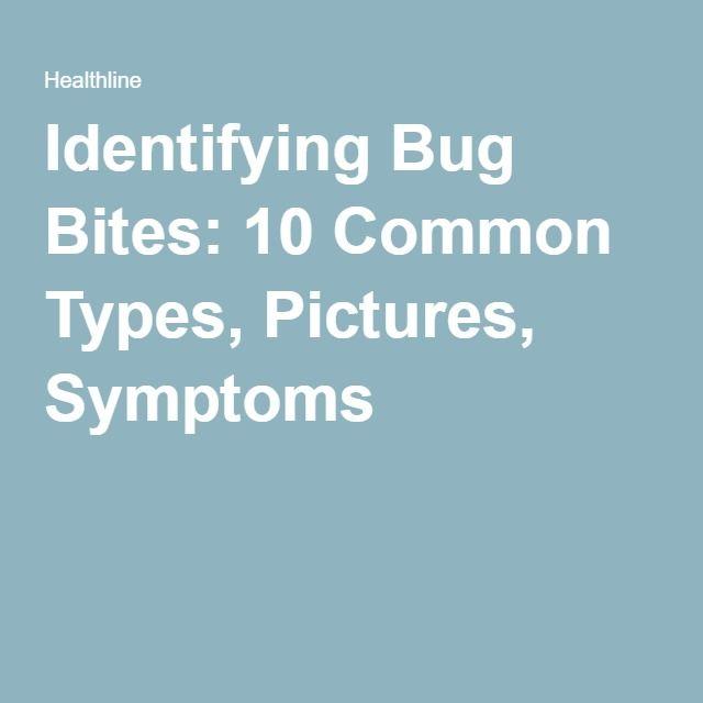 The 25 Best Identifying Bug Bites Ideas On Pinterest