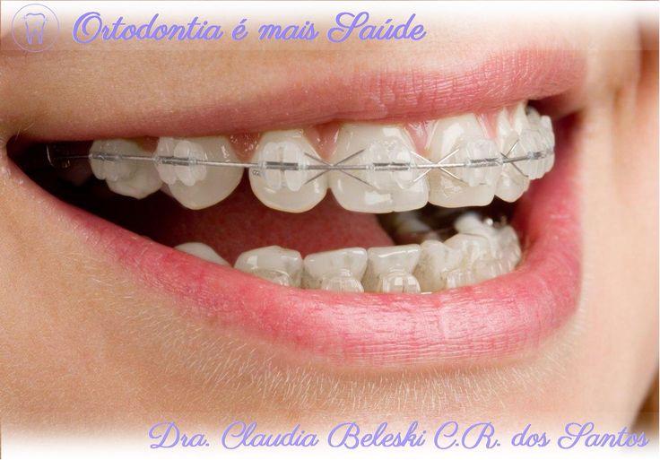 Em Curitiba, a Dra. Claudia Beleski C. R. dos Santos explica que geralmente quem está iniciando um tratamento com aparelho ortodôntico sente algum desconforto inicial, por isso é importante o uso da cera ortodôntica em pontos mais críticos, onde o aparelho mais incomoda. Leia essa e outras dicas em http://www.ortodontiaemaissaude.com.br/2016/01/cera-ortodontica.html