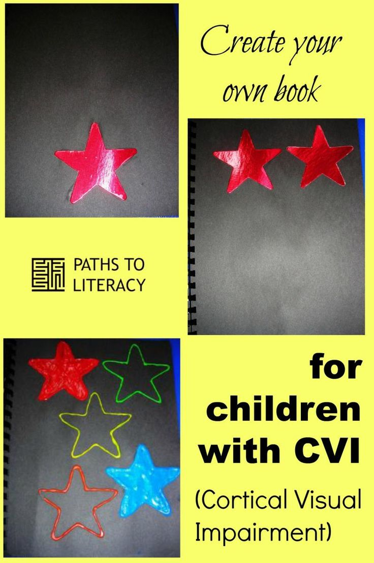 Toys For Cortical Visual Impairment : Best cortical visual impairment cvi images on