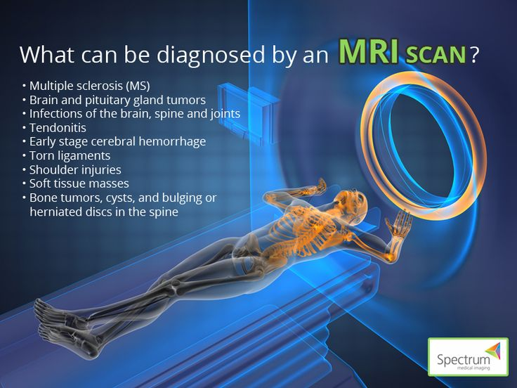 how to get diagnosed with multiple sclerosis
