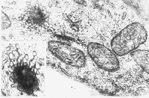 Mitochondria + Golgi