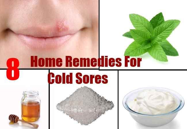 Home Remedy For Cold Sores