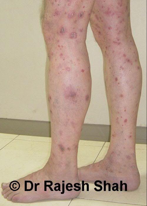 Psoriasis on legs photo: Psoriasis on legs This photo was