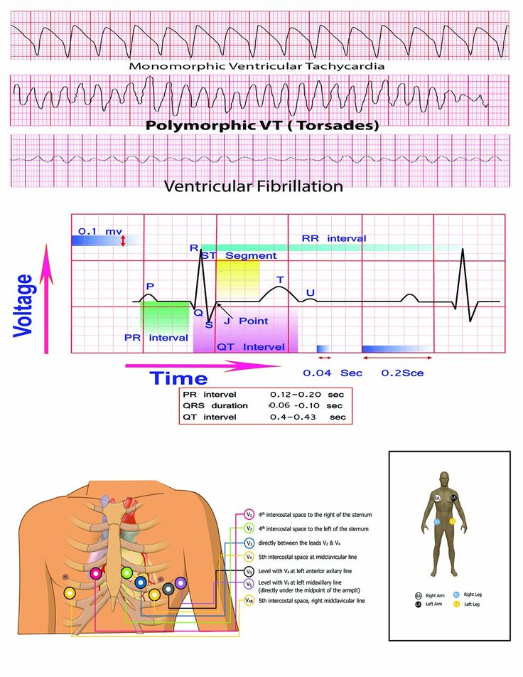 What are the best books for learning ECG interpretation ...