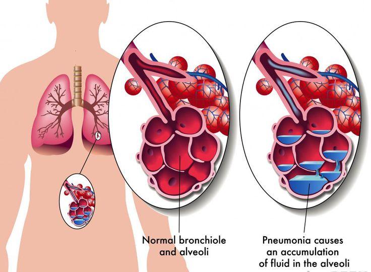 best 25+ pneumonia treatment ideas on pinterest | pneumonia cure, Human Body