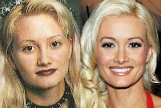 Holly Madison Before & After she hit it big and got a hollywood style makeover. She has makeup on in the 1st pic, but not done by the hollywood pros.... What a dif a hollywood make up artist can make...