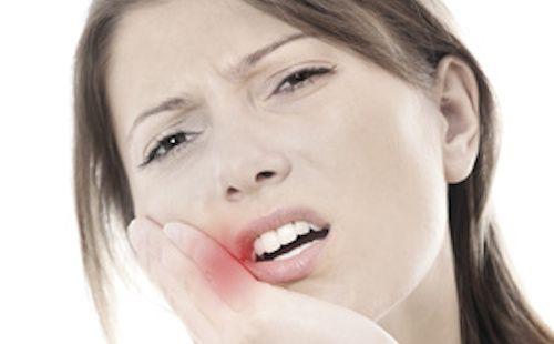 Vous avez un mal de dent ? En attendant la visite chez votre dentiste, suivez les remèdes de nos grands-mères pour soulager le mal de dent. Courage !