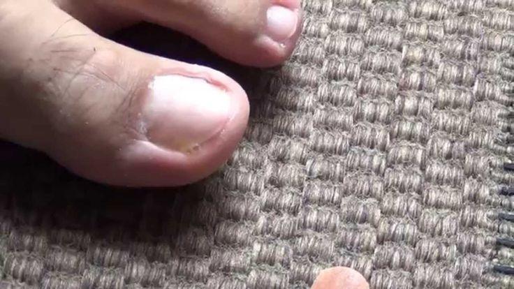 Cómo quitar hongos en uñas de pies y manos en sólo 6 semanas con Dióxido...