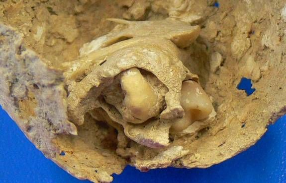 In a necropolis in Spain, archaeologists have found the remains of a Roman woman who died in her 30s with a calcified tumor in her pelvis, a bone and four deformed teeth embedded within it.  Picture is a close-up view of the two teeth still attached to the tumor.