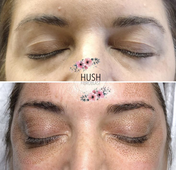Before and after plasma fibroblast eyelid lift, brow lift ...
